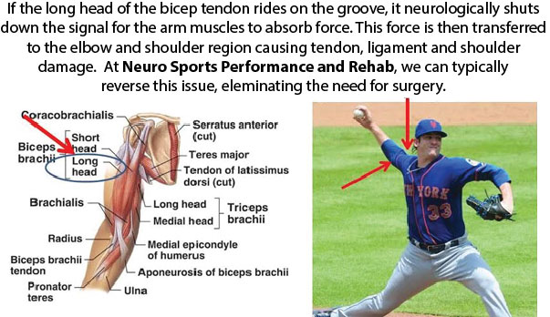 Neuro Sports Performance and Rehab - Eliminate Tommy John Surgery
